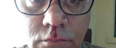 Jornalista é agredido por vereador em São Carlos (SP)