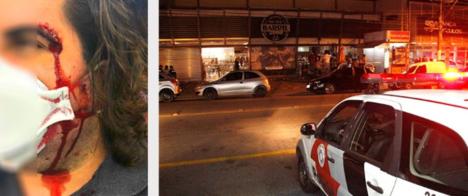 Fotojornalista é agredido em Bragança Paulista (SP)